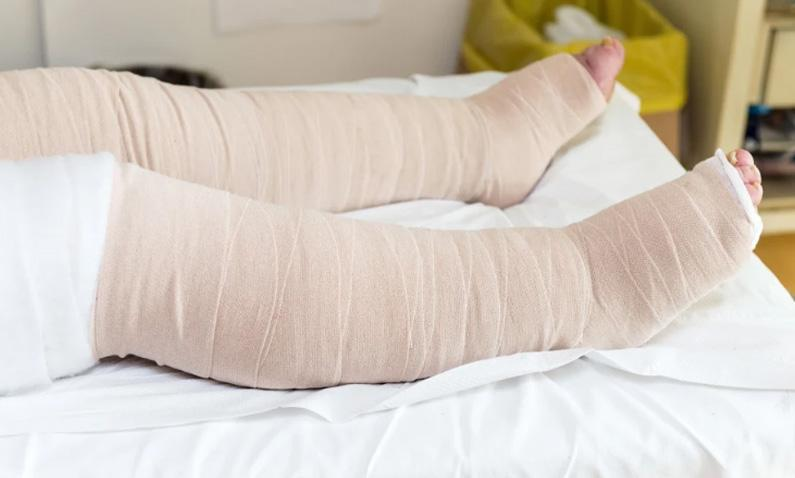 How to Manage Lipedema & Lipo Lymphedema with Compression Garments